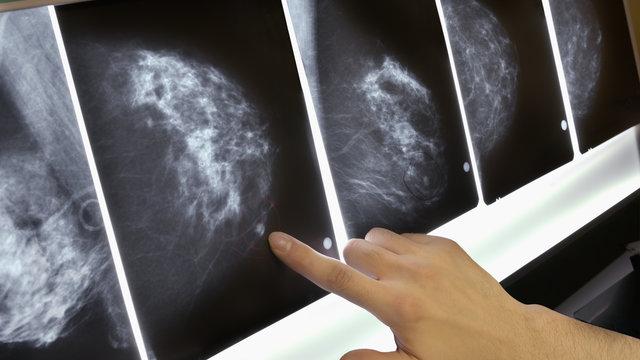 9 feiten over het opsporen van borstkanker